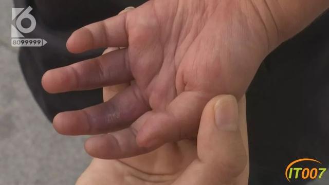2岁女孩被跑步机夹伤,爸爸同意接受3千元赔偿,妈妈索赔18万-14.jpg