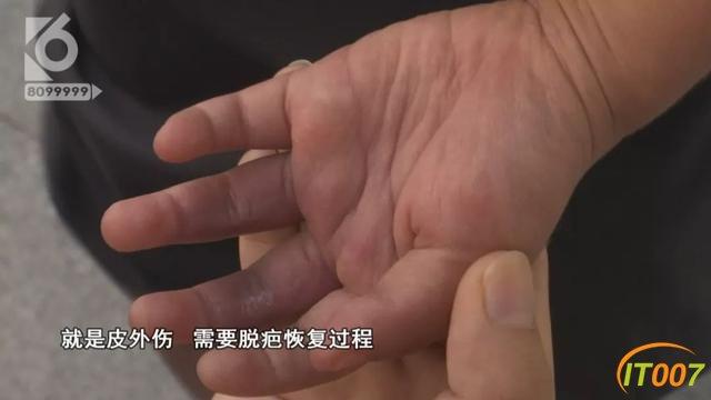 2岁女孩被跑步机夹伤,爸爸同意接受3千元赔偿,妈妈索赔18万-11.jpg